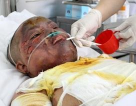 Bình ga phát nổ, người mẹ trẻ bị lửa thiêu sống