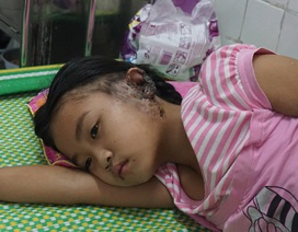Bé 9 tuổi giành giật sự sống với vi khuẩn ăn thịt người