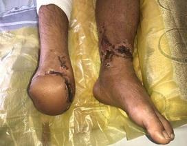Nối bàn chân đứt rời khỏi cơ thể sau 18 giờ đồng hồ