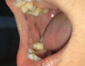 Hiếm gặp bệnh mọc nhiều nốt sắc tố trong miệng