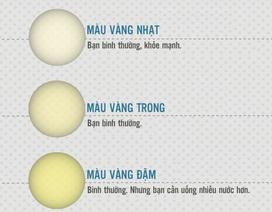 [Inforgraphics]: Tiết lộ sức khỏe qua 11 màu nước tiểu