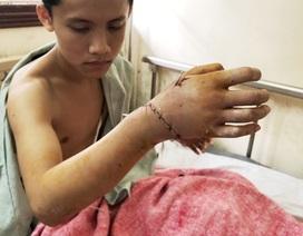 Phẫu thuật gần nửa ngày nối thành công bàn tay bị đứt lìa