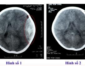 Trẻ 2 tuổi chấn thương sọ não vì ngã từ giường xuống đất