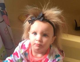 Cô bé tóc dựng đứng vì mắc hội chứng lạ