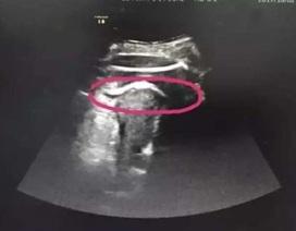Mẹ bầu suýt chết vì bị thai nhi đạp thủng tử cung, thò cả chân ra ngoài