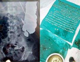 Kinh dị bệnh nhân nuốt 7kg tiền xu, đinh ốc vào bụng vì bị trầm cảm