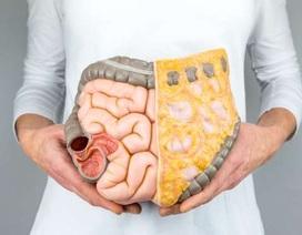 13 loại ung thư liên quan đến béo phì