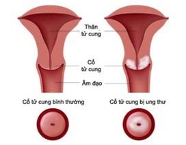 Sàng lọc sớm Ung thư cổ tử cung - Liệu có thực sự cần thiết?