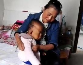 Con trai 30 tuổi trong hình hài đứa trẻ, mẹ già thề chăm sóc suốt đời