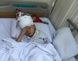 Bệnh viện Hà Thành phẫu thuật miễn phí cho bé bị u hắc tố bẩm sinh diện rộng