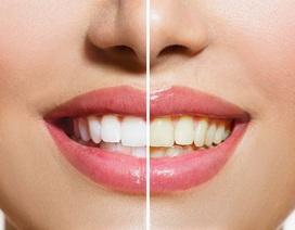 Răng màu vàng khoẻ hơn răng trắng sáng?