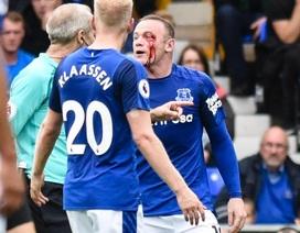 Lĩnh trọn cùi chỏ, Rooney máu chảy đầm đìa