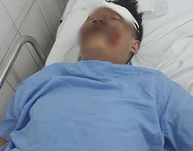 Hà Nội: Tài xế tông 2 sinh viên nguy kịch rồi lái xe bỏ trốn