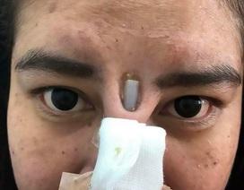 Kinh hoàng silicon nâng mũi chồi ra giữa 2 mắt