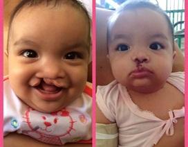 Miễn phí phẫu thuật sứt môi, hở hàm ếch, lệch lỗ tiểu