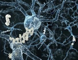 Tập thể dục giúp chống mất trí nhớ khi có tuổi