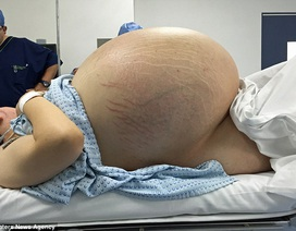 Mang u nang buồng trứng nặng bằng 10 bé sơ sinh