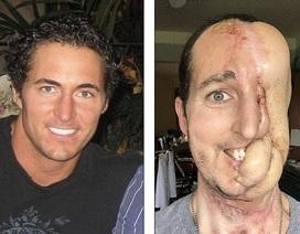 Sợ phẫu thuật, mất nửa mặt vì ung thư mô mềm
