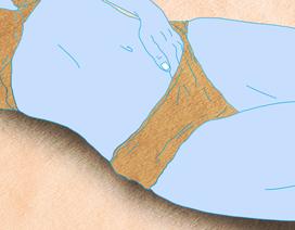 Chỉ có 1% phụ nữ nhận ra triệu chứng phổ biến của ung thư buồng trứng