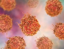 Tìm ra nguyên nhân tại sao ung thư tuyến tiền liệt di căn