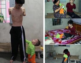 Rớt nước mắt cảnh người cha trẻ mất đôi tay chăm bé thơ khát sữa