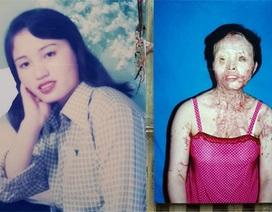"""11 năm """"sống không bằng chết"""" của cô giáo tiểu học bị kẻ xấu tạt a xít giữa đêm khuya"""