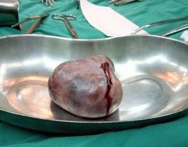 Hi hữu cứu sống nữ sinh mắc bệnh hiếm sau 5 tháng nằm viện