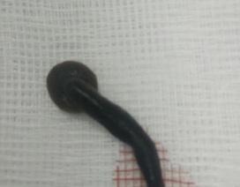 Hãi hùng hình ảnh con vắt dài 5cm trong thanh quản bệnh nhân