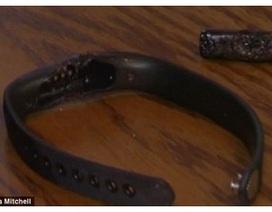 Vòng đeo tay thông minh Fitbit bất ngờ phát nổ rất nguy hiểm