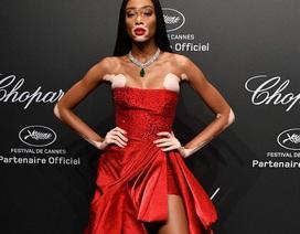 Người mẫu bạch biến nổi bật trong tiệc tại Cannes