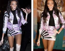 Người mẫu bạch biến đắt show tại tuần lễ thời trang