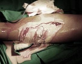 """Thầy lang cắt lể """"máu độc"""" ở chân, bệnh nhi suýt mất mạng"""