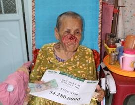 """Trao hơn 54 triệu đồng đến cụ bà mắc """"bệnh lạ"""" không tiền chữa trị"""