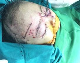 Bị chó nhà tấn công, 2 trẻ nhỏ phải nhập viện