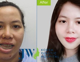 Cô giáo mặt méo 'lột xác' ngoạn mục sau phẫu thuật thẩm mỹ