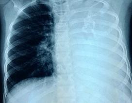 Bé gái ho kéo dài vì mắc u phổi cực hiếm