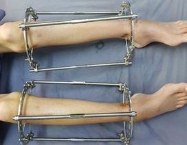 Nắn chỉnh, kéo dài chân làm đẹp coi chừng tai biến