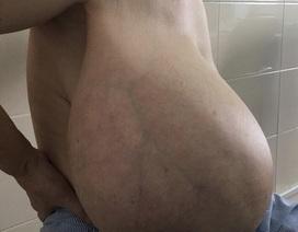 Phát hoảng khối u vú nặng gần 9 kg kéo lệch cột sống người phụ nữ