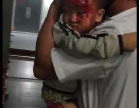 Thực hư vụ người nhà bế bé trai máu chảy đầm đìa chạy đi tìm bác sĩ