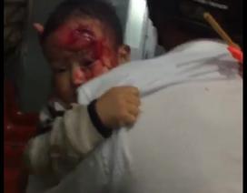 Vụ người nhà bế con trai máu me tìm bác sĩ: Phê bình nhưng không kỷ luật kíp trực