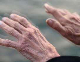 Thêm một phương pháp hỗ trợ người bệnh Parkinson
