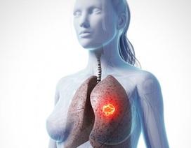 Ung thư phổi ở nữ giới và nguyên nhân ít ai ngờ tới