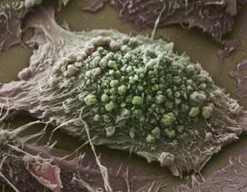 Các nhà khoa học nêu phương pháp mới chống ung thư