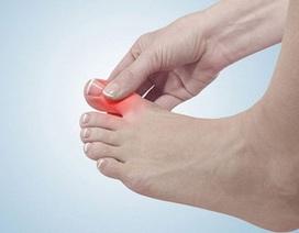 Bạn có hiểu sai về bệnh gout?