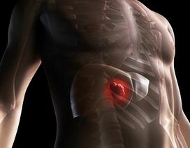 3 thủ phạm hàng đầu gây ung thư gan