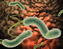 Video tư vấn: Làm thế nào để nhận biết khuẩn HP kháng thuốc?