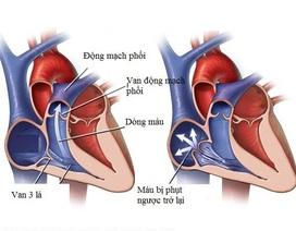Hở van tim 3 lá 1/4 không quá nguy hiểm nhưng chớ chủ quan