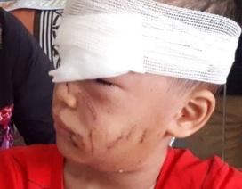 Kinh hoàng bé trai 6 tuổi bị chó nhà cắn rách mặt