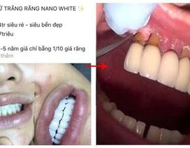Những hiểu lầm về bọc răng sứ