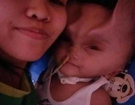 Em bé 1 tuổi mang cặp sừng quỷ dữ sau ca phẫu thuật bất thành